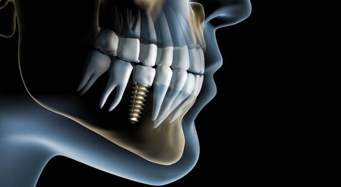 Стоматология и имплантология