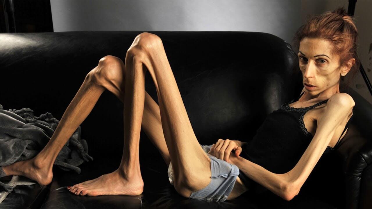 Самые худые люди в мире: фотографии и описания