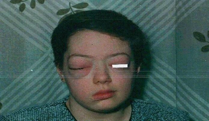 Болезнь Гиппеля - Линдау