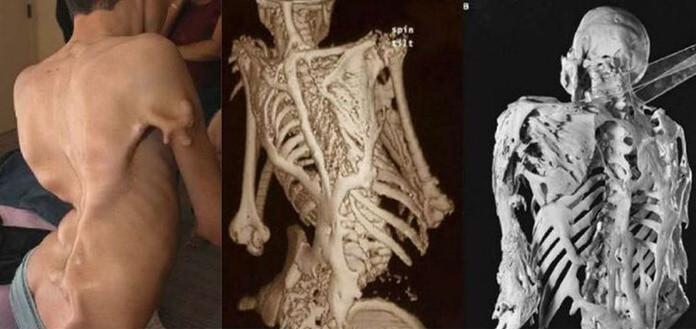 Фибродисплазия оссифицирующая прогрессирующая